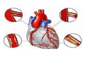مشکلات قلبی در اثر بالا بودن چربی