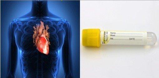 آزمایش آنزیم قلبی چیست و برای چه منظور گرفته می شود؟