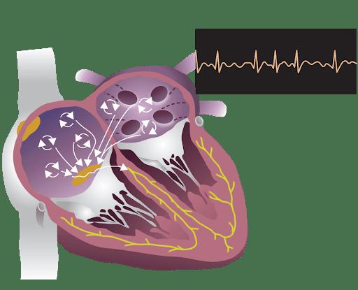 تشخیص فیبریلاسیون دهلیزی با اکوکاردیوگرافی | اکوی قلب