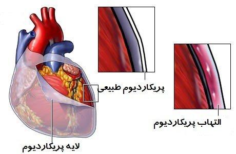 التهاب پرده دور قلب(پریکاردیت)