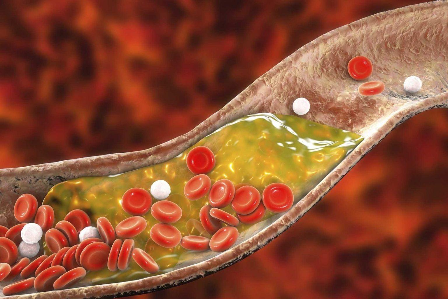 چربی خون بالا نوع 3